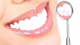 stomatologicheskoe otbelivanie